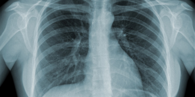 global tuberculosis